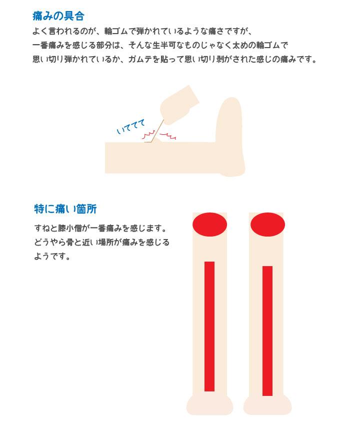 脱毛_03